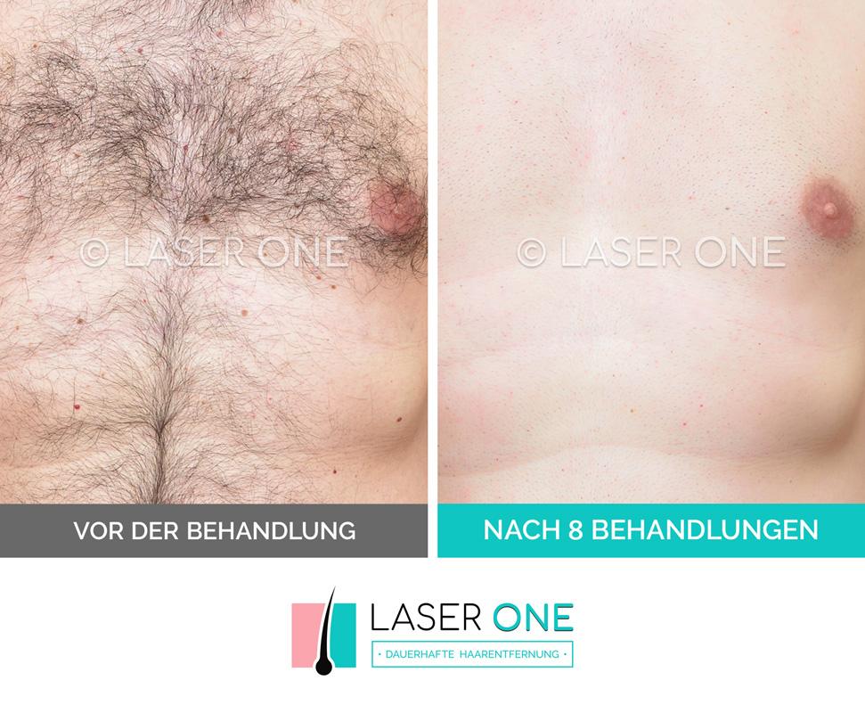 Galerie Laser ONE Haarentfernung - unsere VORHER / NACHHER